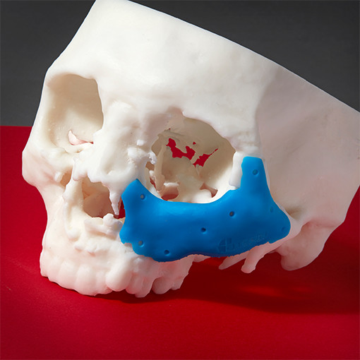 Color-Resin-Print-Formlabs-Form-2-Skull-White-Blue